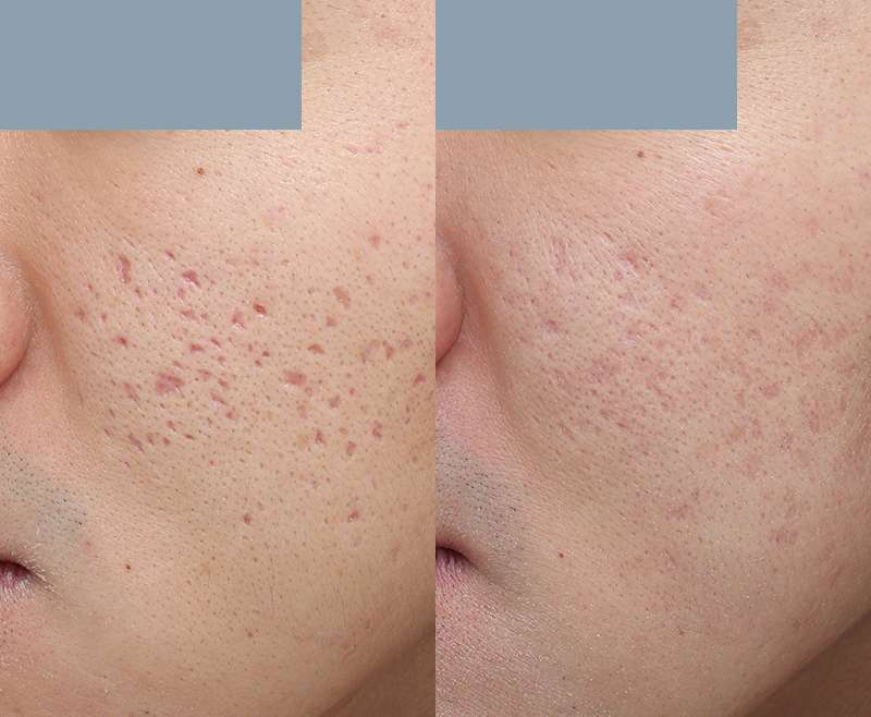 1 Treatment of Infini & Eco2 for Indent Acne Scar