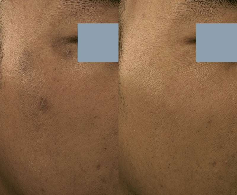 3 Treatments of Hollywood Laser Peel for  Post Inflammatory Hyperpigmentation