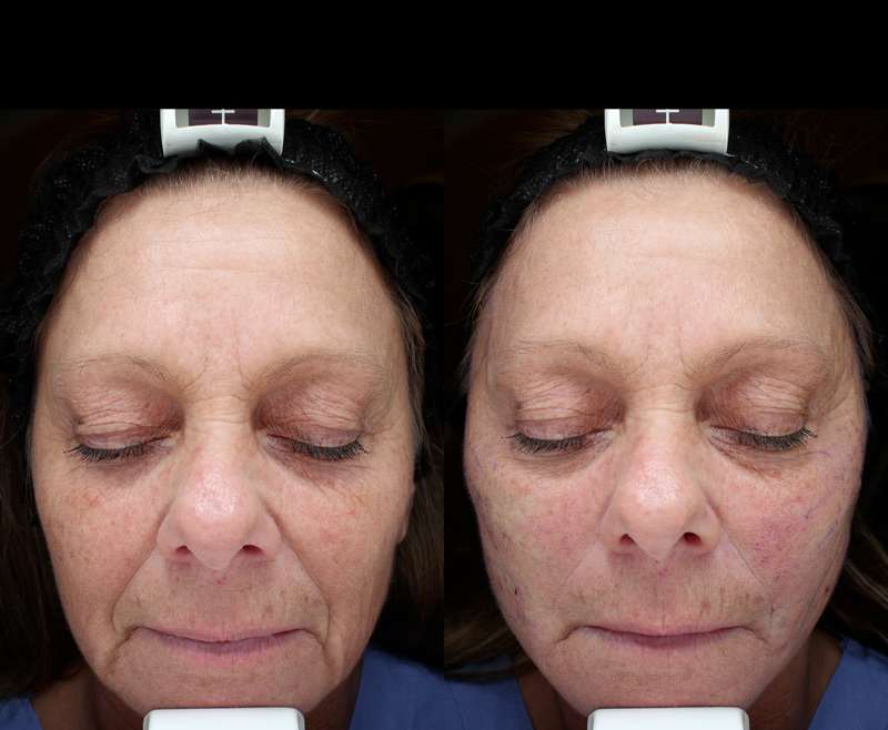 1 Treatment of Thread Lifting for Tightening