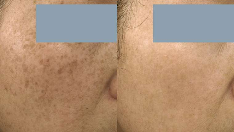3 Treatments of Pico Laser for Sun Spot