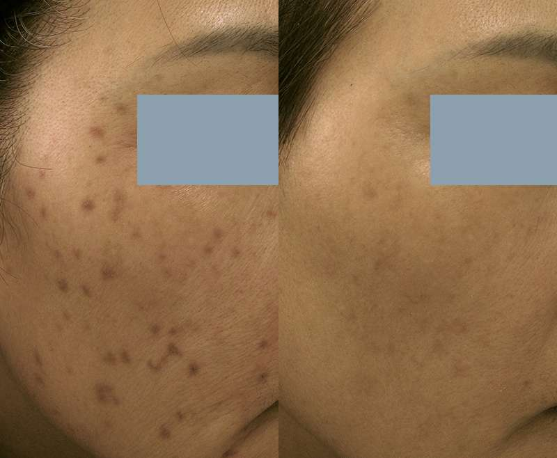 3 Treatments of Laser Toning for Post Inflammatory Hyperpigmentation