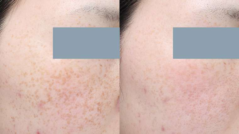 3 Treatments of IPL for Freckles