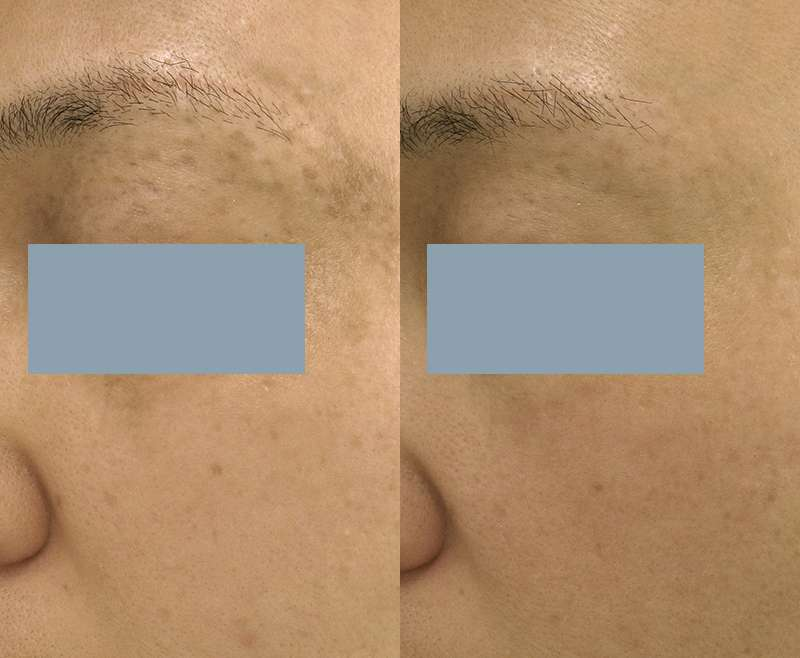 5 Treatment of Nd:YAG for Nevus of Ota on Eye Area