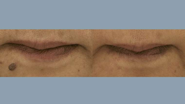 1 Treatment of Surgical Mole Removal on Chin
