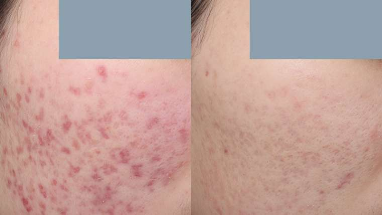 5 Treatment of V-Beam for Red Acne Scar