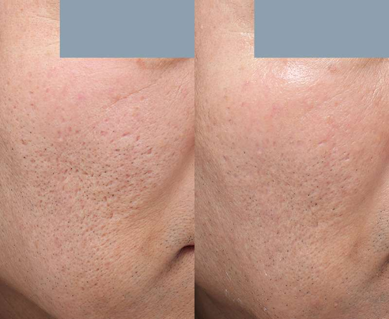 1 Treatment of Microneedling for Acne Scar