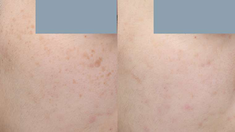 1 Treatment of Pico Laser for Freckles