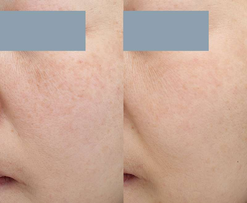 5 Treatments of Pico Toning and Pico Spot Laser for Melasma and Freckles