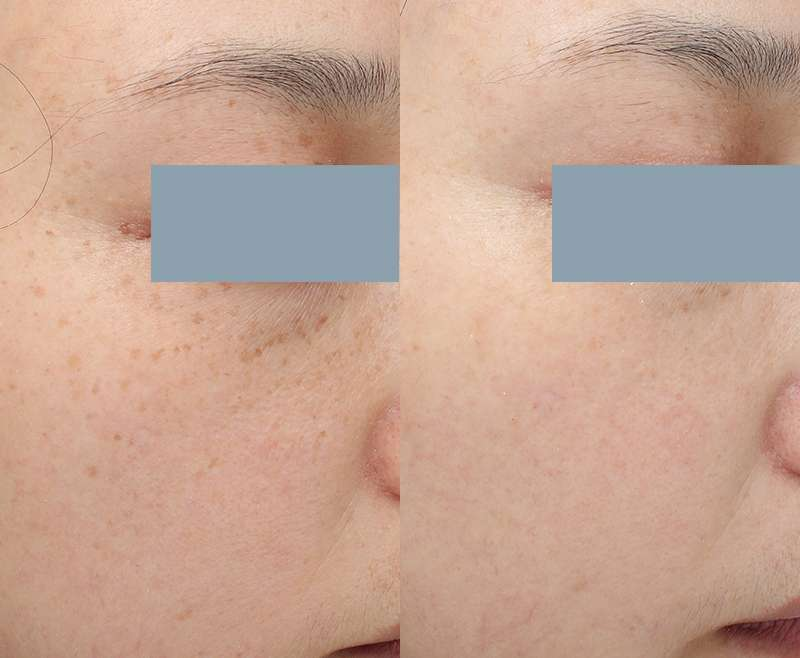 3 Treatments of Pick Laser for Freckles