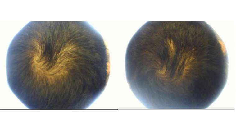 6 Treatments of PRP for Hair Loss Treatment
