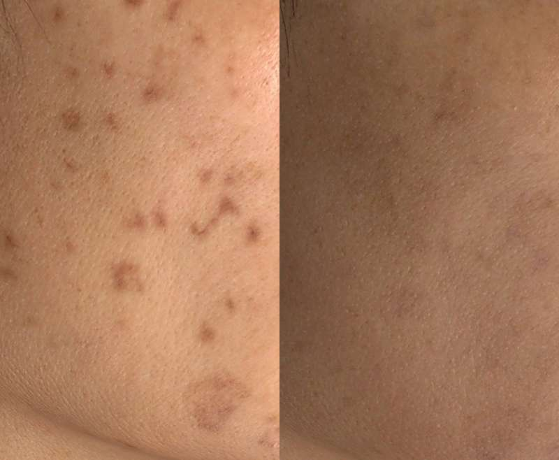 6 Treatments of Laser Toning for Post Inflammatory Hyperpigmentation