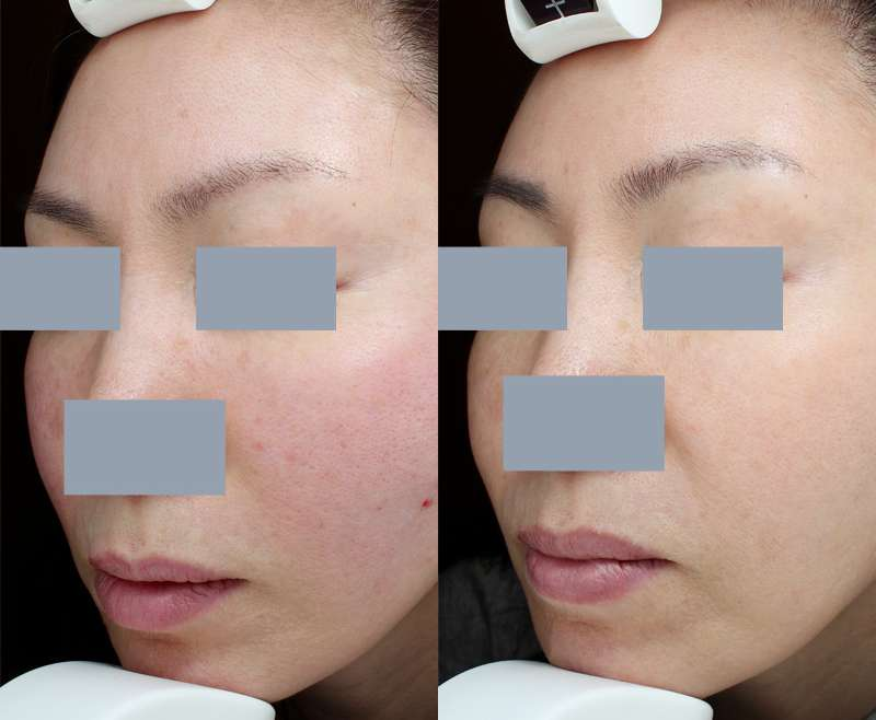6 Treatments of Pico Toning for Melasma Test