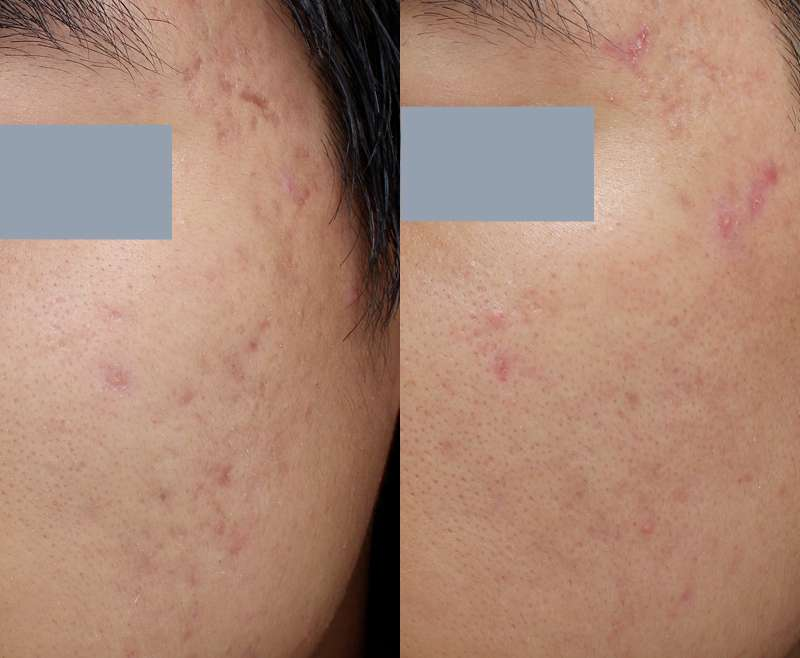3 Treatments of Infini for Acne Scar