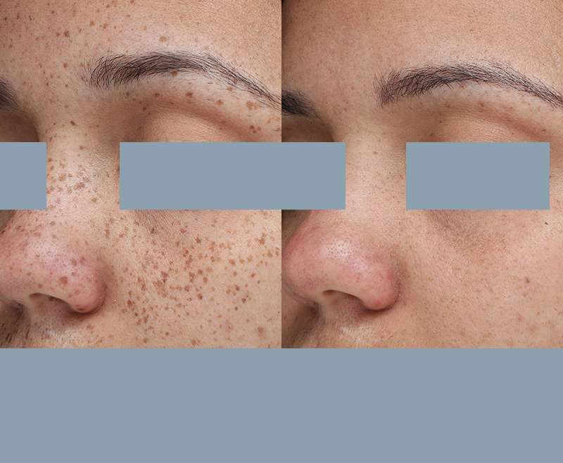 5 Treatments of Nd:YAG for Freckles and Sunspots