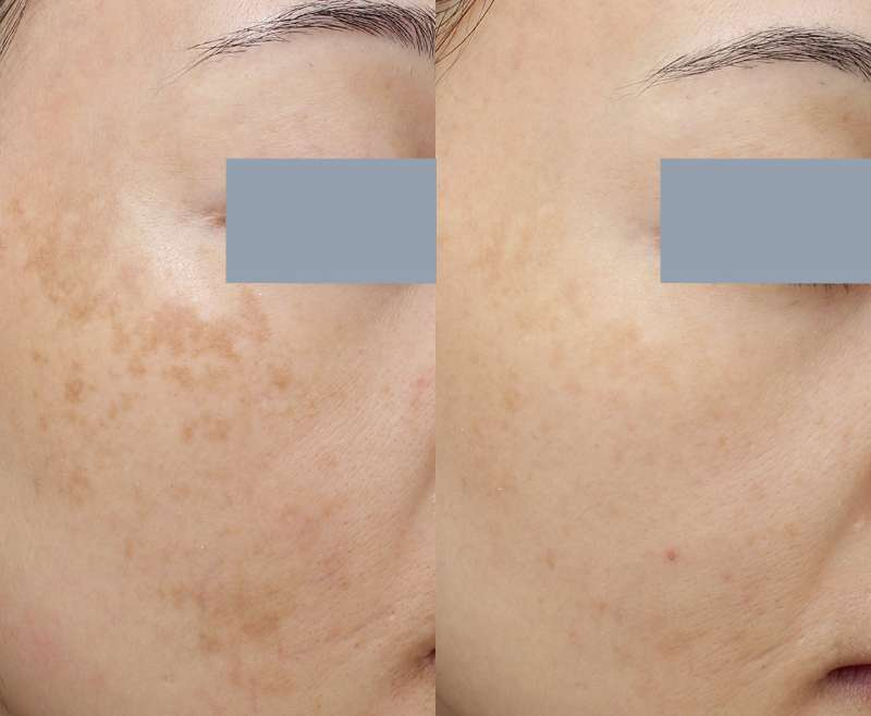 Pico Toning for Melasma