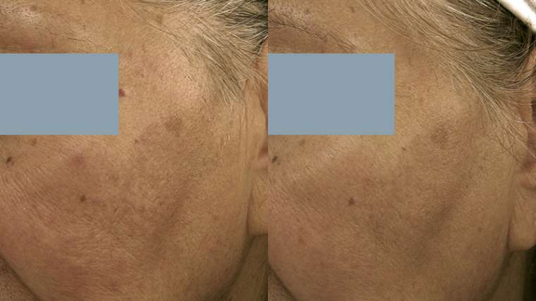 1 Treatment of Ultherapy for Fine Wrinkles and Tightening