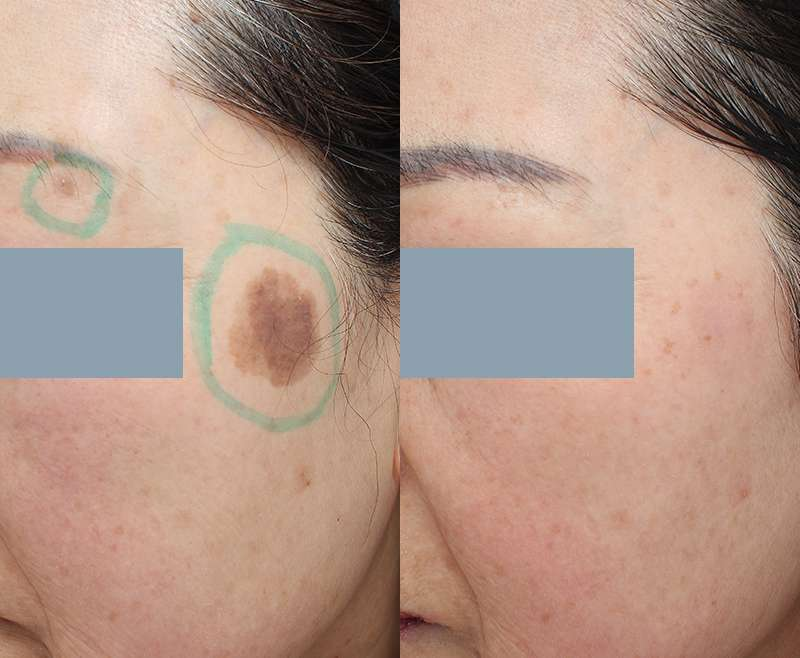 1 Treatment of Nd:YAG for Age Spot