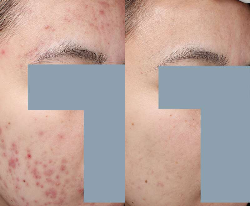 6 Treatments of PDT for Acne
